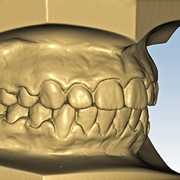 3D Digital Scanning, Sheffield Orthodontic Lab