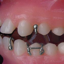 Twin Blocks, Sheffield Orthodontic Labs